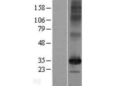 C2orf18 (SLC35F6) (NM_017877) Human Over-expression Lysate