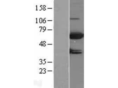 Transient overexpression lysate of myotubularin related protein 9 (MTMR9)