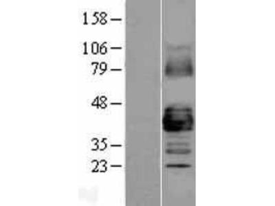 Transient overexpression lysate of gap junction protein, alpha 1, 43kDa (GJA1)
