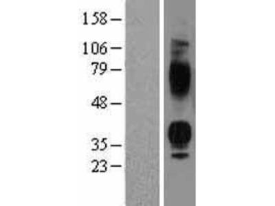Vasopressin V1b receptor (AVPR1B) (NM_000707) Human Over-expression Lysate