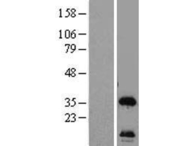 Transient overexpression lysate of chromosome 12 open reading frame 24 (C12orf24)