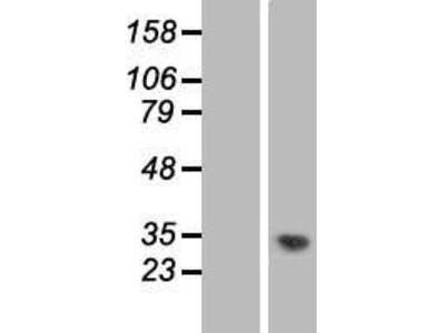 Transient overexpression lysate of chromosome 1 open reading frame 35 (C1orf35)