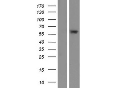 Transient overexpression lysate of chromosome 6 open reading frame 146 (C6orf146)