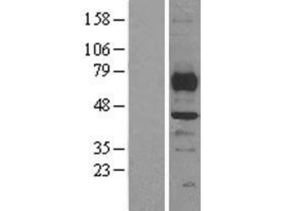 Transient overexpression lysate of SET and MYND domain containing 3 (SMYD3), transcript variant 2
