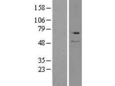 Serine Palmitoyltransferase (SPTLC2) (NM_004863) Human Over-expression Lysate