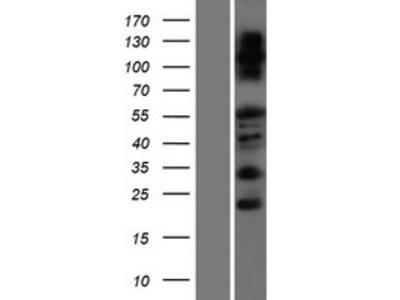 Transient overexpression lysate of family with sequence similarity 83, member F (FAM83F)