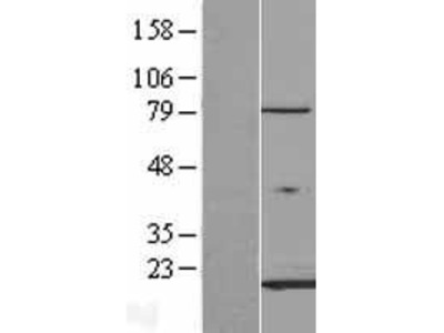Transient overexpression lysate of fatty acid binding protein 3, muscle and heart (mammary-derived growth inhibitor) (FABP3)