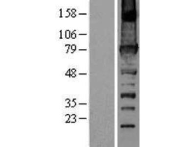 Transient overexpression lysate of fermitin family homolog 3 (Drosophila) (FERMT3), transcript variant URP2SF