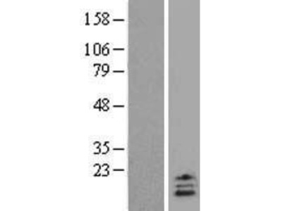 Transient overexpression lysate of urocortin 2 (UCN2)