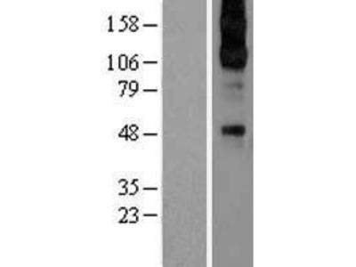 Transient overexpression lysate of adrenergic, alpha-2C-, receptor (ADRA2C)