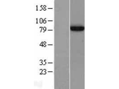 Transient overexpression lysate of adaptor protein, phosphotyrosine interaction, PH domain and leucine zipper containing 1 (APPL1)