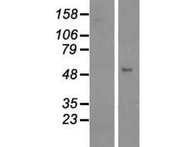 Transient overexpression lysate of GRINL1A complex locus (GCOM1), transcript variant 12