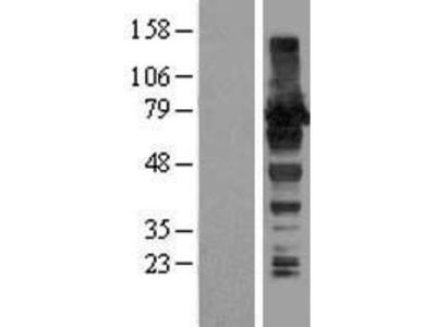 Transient overexpression lysate of A kinase (PRKA) anchor protein 8-like (AKAP8L)