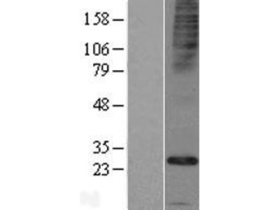 Transient overexpression lysate of family with sequence similarity 26, member E (FAM26E)