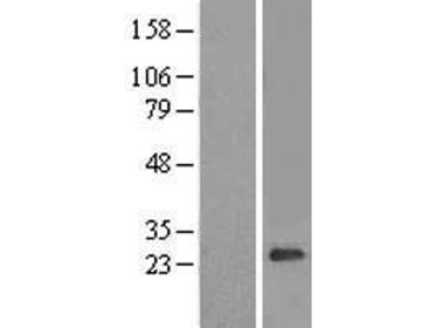 Transient overexpression lysate of aquaporin 11 (AQP11)