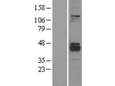Transient overexpression lysate of protein phosphatase 1K (PP2C domain containing) (PPM1K), nuclear gene encoding mitochondrial protein