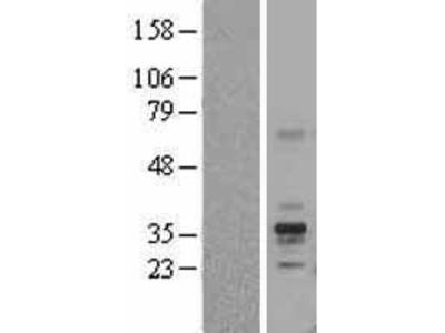 Transient overexpression lysate of folate receptor 1 (adult) (FOLR1), transcript variant 1