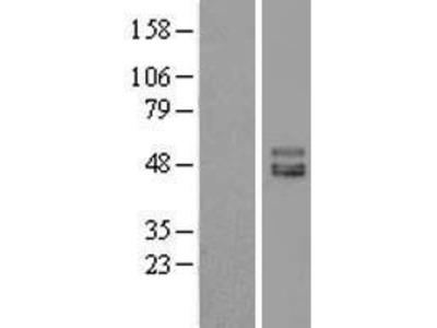 Transient overexpression lysate of immunoglobulin superfamily containing leucine-rich repeat (ISLR), transcript variant 1