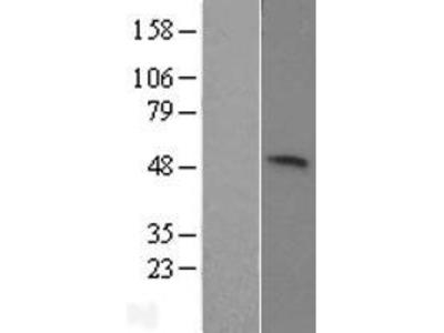 Transient overexpression lysate of U2AF homology motif (UHM) kinase 1 (UHMK1)
