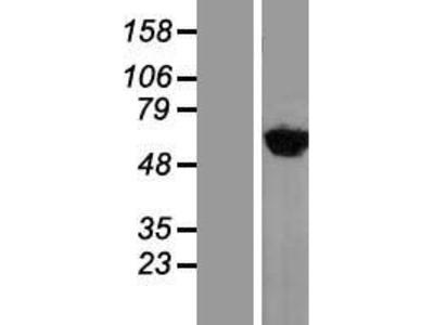 Transient overexpression lysate of tyrosyl-tRNA synthetase (YARS)