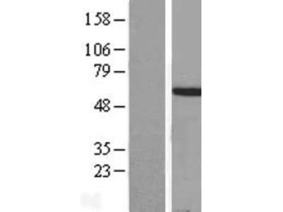Transient overexpression lysate of homeobox A3 (HOXA3), transcript variant 1