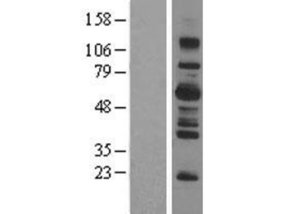 Transient overexpression lysate of SH2B adaptor protein 3 (SH2B3)