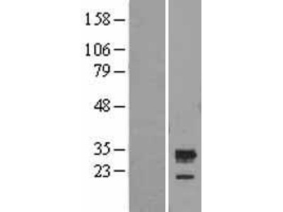 Transient overexpression lysate of chromosome 5 open reading frame 30 (C5orf30)
