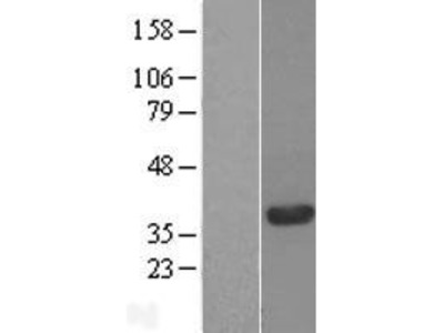 Transient overexpression lysate of chromosome 20 open reading frame 43 (C20orf43)