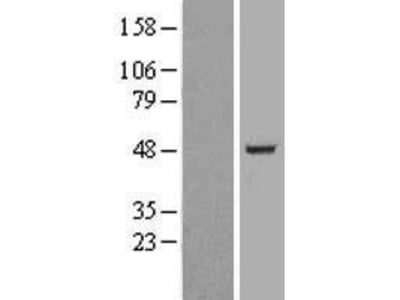 BAF53b (ACTL6B) (NM_016188) Human Over-expression Lysate