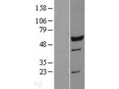 Transient overexpression lysate of leucine rich repeat containing 6 (LRRC6)