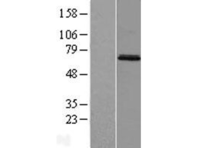 Transient overexpression lysate of mesoderm induction early response 1, family member 3 (MIER3)