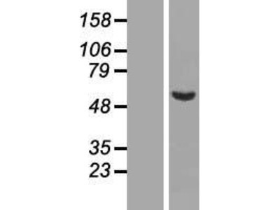 C9orf43 (NM_152786) Human Over-expression Lysate