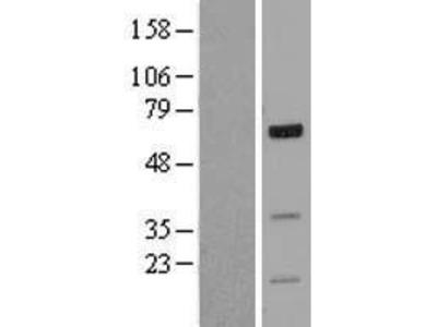 Transient overexpression lysate of forkhead box J2 (FOXJ2)