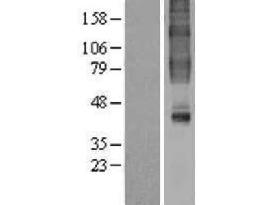 Transient overexpression lysate of G protein-coupled receptor 32 (GPR32)