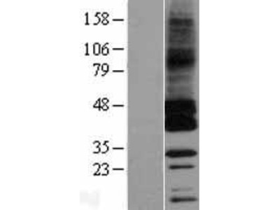 Transient overexpression lysate of G protein-coupled receptor, family C, group 5, member C (GPRC5C), transcript variant 1