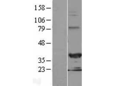 Transient overexpression lysate of hairy/enhancer-of-split related with YRPW motif 2 (HEY2)