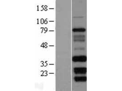 Transient overexpression lysate of family with sequence similarity 92, member B (FAM92B)