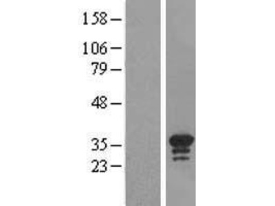 Transient overexpression lysate of chromosome 16 open reading frame 57 (C16orf57)