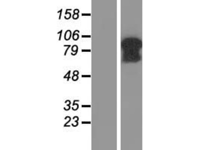 C5orf25 (SIMC1) (NM_198567) Human Over-expression Lysate