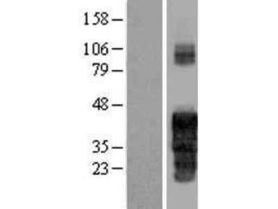 Transient overexpression lysate of family with sequence similarity 122A (FAM122A)