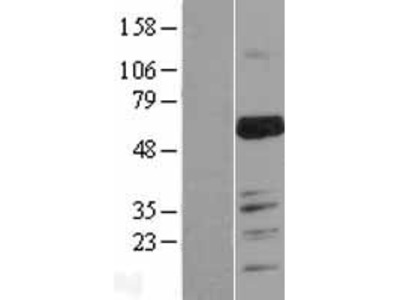 Transient overexpression lysate of MARVEL domain containing 2 (MARVELD2), transcript variant 1