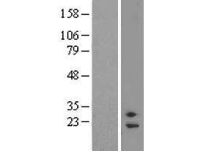 Transient overexpression lysate of family with sequence similarity 58, member A (FAM58A), transcript variant 1