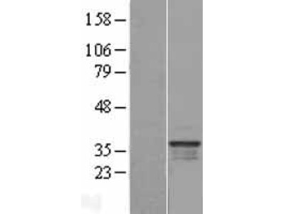 C16orf93 (CCDC189) (NM_001014979) Human Over-expression Lysate