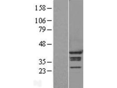 Transient overexpression lysate of heterogeneous nuclear ribonucleoprotein A1 (HNRNPA1), transcript variant 1