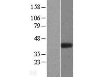 Transient overexpression lysate of ADP-ribosylhydrolase like 2 (ADPRHL2), nuclear gene encoding mitochondrial protein