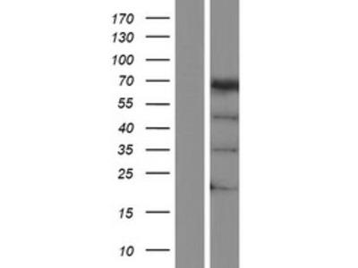 Transient overexpression lysate of v-raf murine sarcoma 3611 viral oncogene homolog (ARAF)
