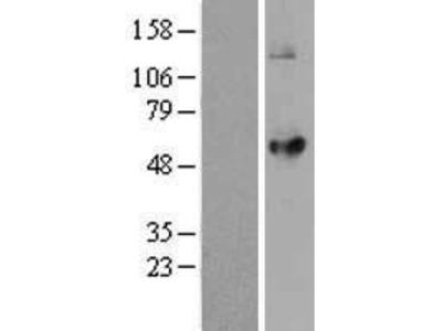 Transient overexpression lysate of lysophosphatidylcholine acyltransferase 2 (LPCAT2)