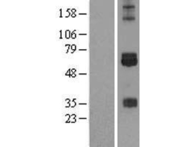 Transient overexpression lysate of cAMP responsive element binding protein 3-like 3 (CREB3L3)