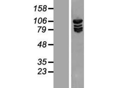 Transient overexpression lysate of methionyl-tRNA synthetase (MARS)