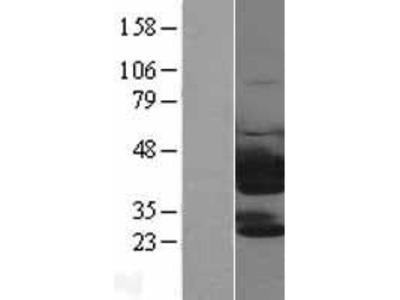 Transient overexpression lysate of twinfilin, actin-binding protein, homolog 1 (Drosophila) (TWF1)